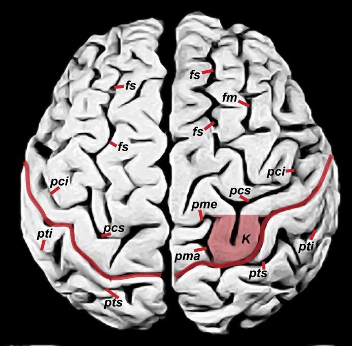 Examining Photographs Of Einstein S Brain Is Not
