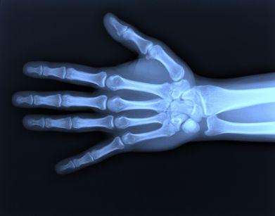 X -ray
