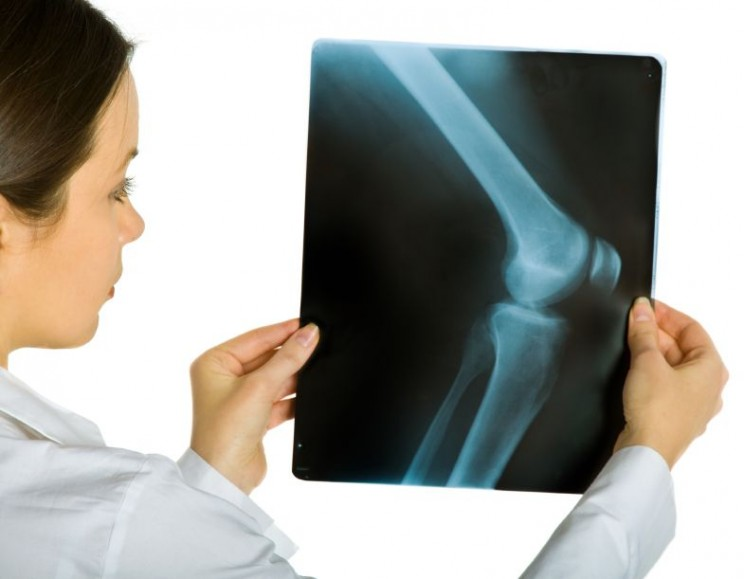 Young attractive female doctor looking x-ray photos